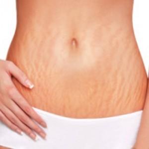 stretch-marks-after-pregnancy